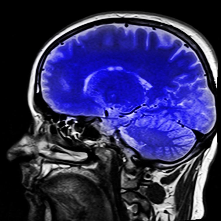 comment régénérer son cerveau
